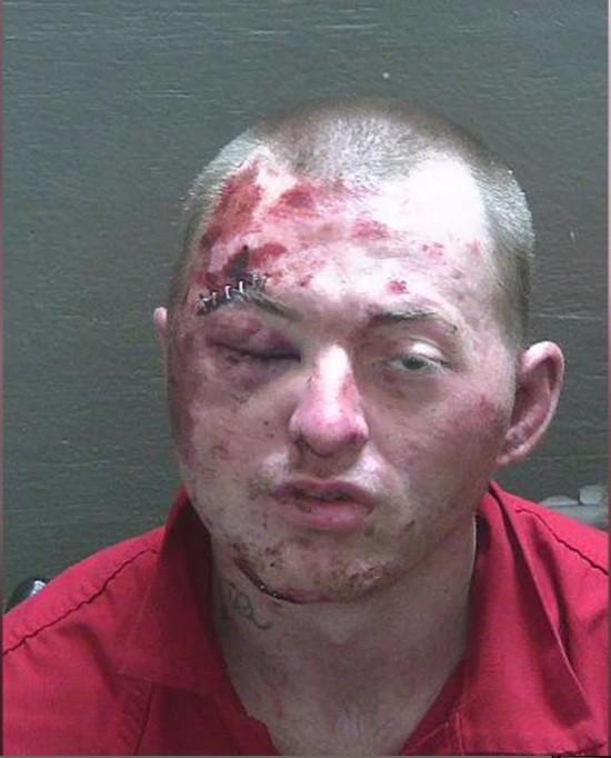 رجل فلوريدا يخسر القتال مع الشرطة / 29 يناير